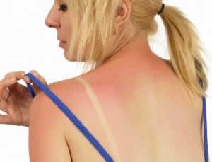 Remedios naturales para las quemaduras solares