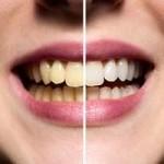 Como puedo blanquear mis dientes