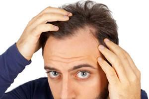 Tratamiento para la caida del pelo