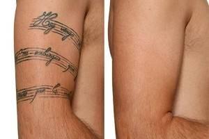 Borrar Tatuajes Como Eliminar Tatuajes De Las Cremas Al Laser