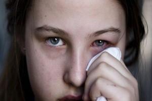 Remedios caseros y naturales para la conjuntivitis