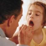 Remedios caseros para la amigdalitis en niños o adultos
