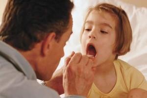 Remedios caseros para la amigdalitis