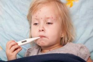 Remedios caseros para la varicela
